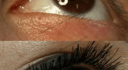 Имплантирование ресничек хирургически