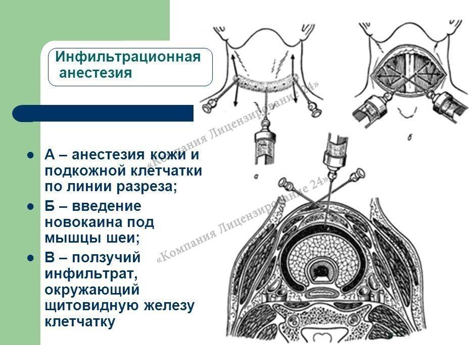 Инфильтрационная, интралигаментарная и внутрикостная анестезия в стоматологии